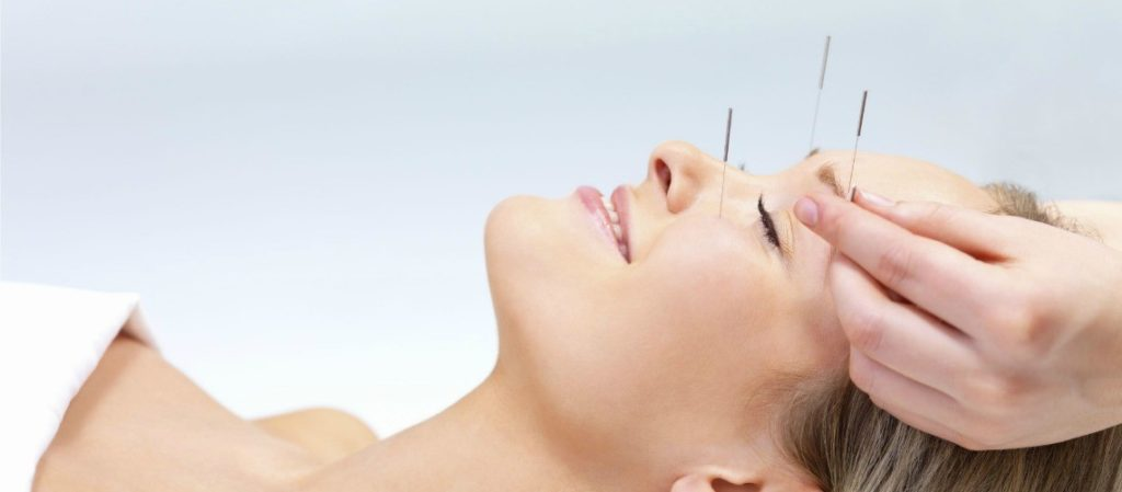 dry needling on the face and head